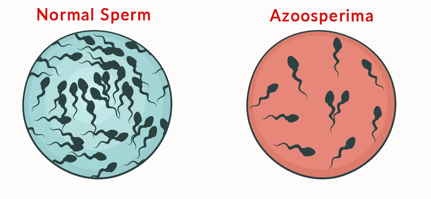 Azoospermia Male Infertility - Gem Hospital and IVF centre
