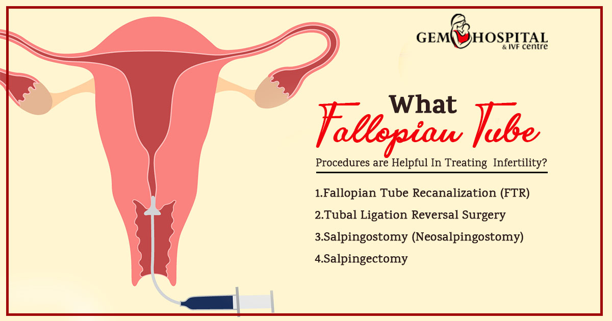 What Fallopian Tube Procedures