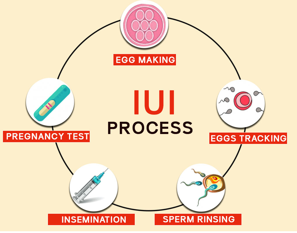 IUI process - Gem Hospital and IVF centre