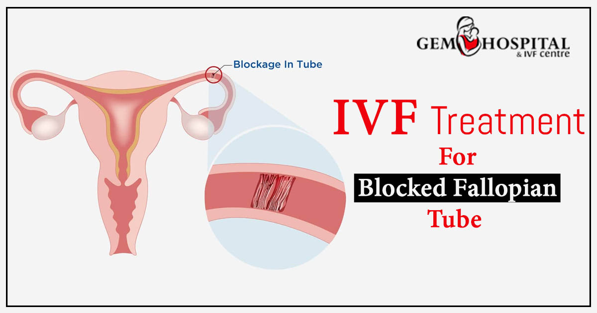 IVF treatment for blocked fallopian tube