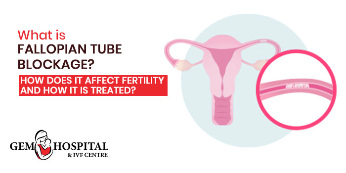What is fallopian tube blockage How does it affect fertility and how it is treated